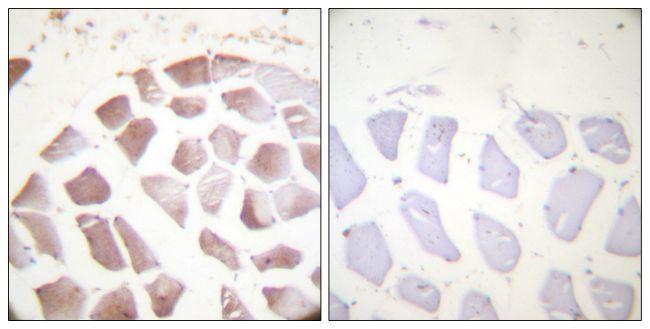 Phospho-Actin alpha/gamma (Tyr53, Tyr55) Antibody (PA5-38402)
