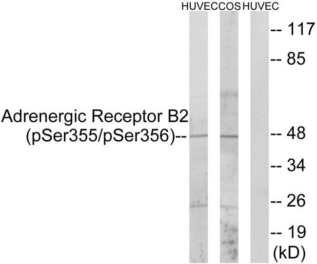 Phospho-beta-2 Adrenergic Receptor (Ser355, Ser356) Antibody (PA5-38403) in Western Blot