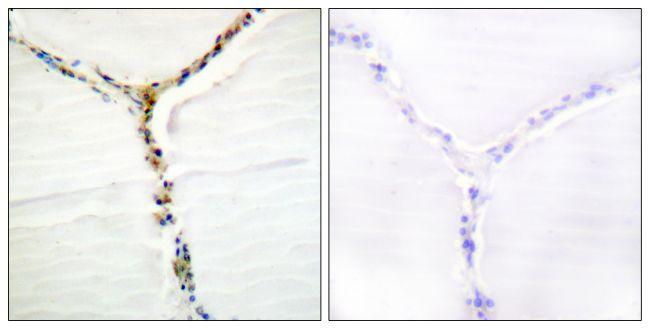 Phospho-AHR (Ser36) Antibody (PA5-38404) in Immunohistochemistry (Paraffin)