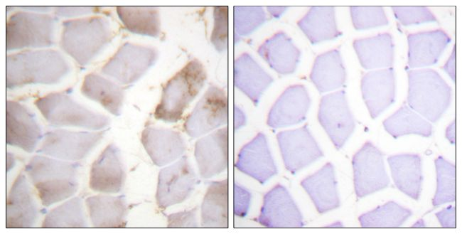 Phospho-AMPK beta-1 (Ser181) Antibody (PA5-38405) in Immunohistochemistry (Paraffin)