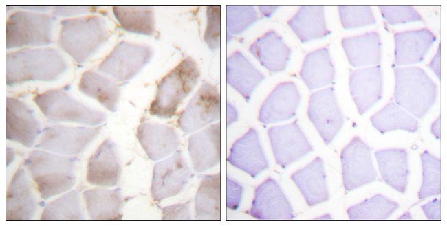 Phospho-AMPK beta-1 (Ser181) Antibody (PA5-38405)