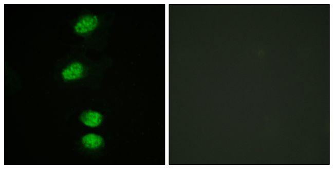 Phospho-Androgen Receptor (Ser94) Antibody (PA5-38406) in Immunofluorescence