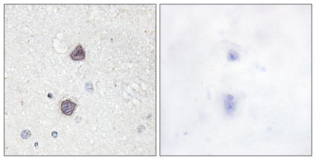 Phospho-Aquaporin 2 (Ser256) Antibody (PA5-38407) in Immunohistochemistry (Paraffin)