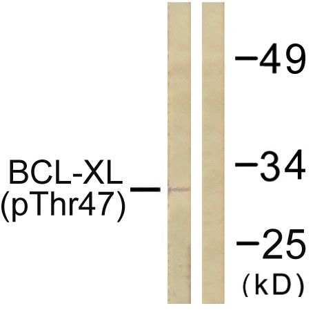 Phospho-Bcl-X (Thr47) Antibody (PA5-38410) in Western Blot