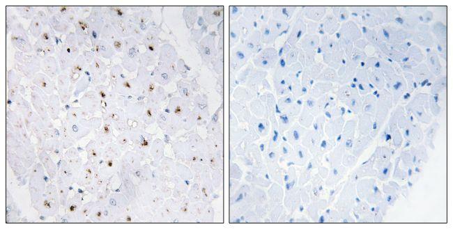 Phospho-Blooms Syndrome (Thr99) Antibody (PA5-38411) in Immunohistochemistry (Paraffin)