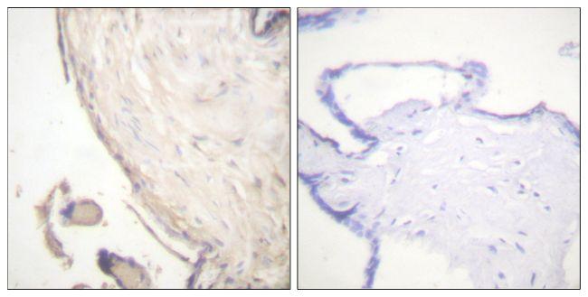 Phospho-B-Raf (Ser602) Antibody (PA5-38412) in Immunohistochemistry (Paraffin)