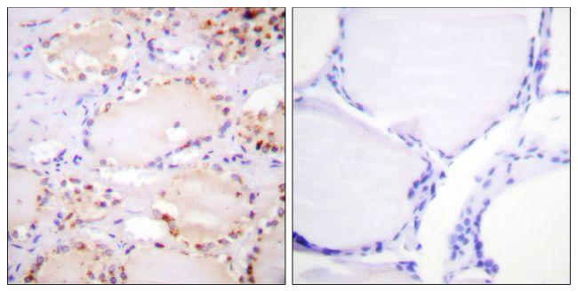 Phospho-ETK (Tyr566) Antibody (PA5-38414) in Immunohistochemistry (Paraffin)