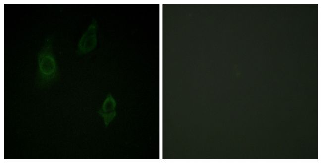 Phospho-PKC Pan (Thr497) Antibody (PA5-38418) in Immunofluorescence