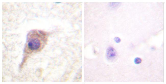 Phospho-PKC zeta (Thr560) Antibody (PA5-38419) in Immunohistochemistry (Paraffin)
