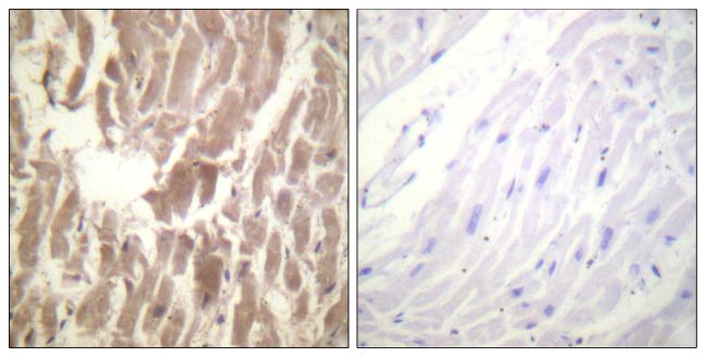 Phospho-Cardiac Troponin I (Ser43) Antibody (PA5-38425)