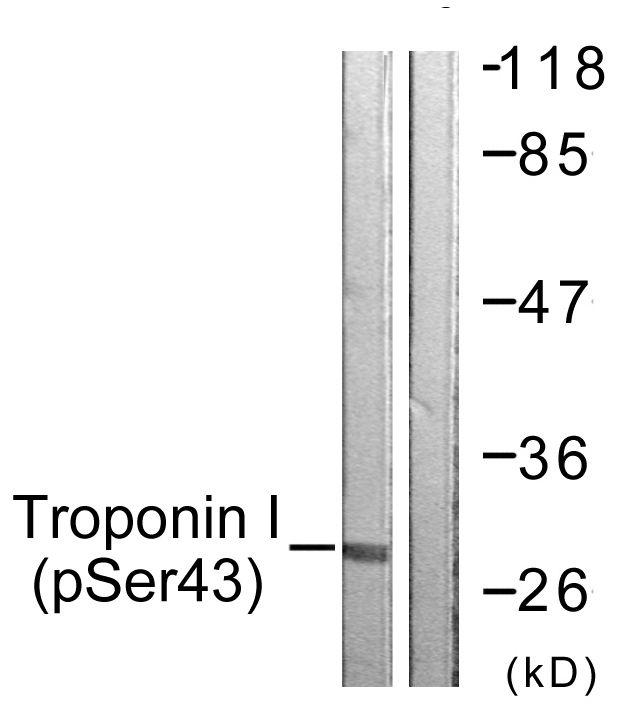 Phospho-Cardiac Troponin I (Ser43) Antibody (PA5-38425) in Western Blot