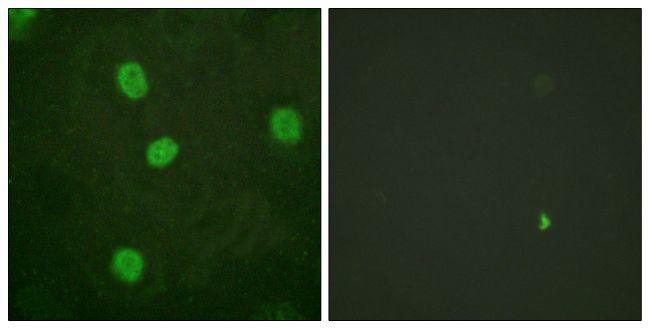 Phospho-B-Myb (Ser577, Ser581) Antibody (PA5-38428) in Immunofluorescence
