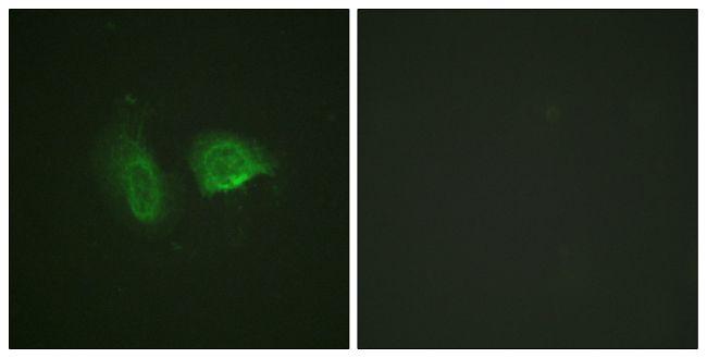 Phospho-Calcium Sensing Receptor (Thr888) Antibody (PA5-38432)