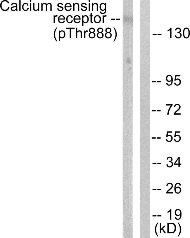 Phospho-Calcium Sensing Receptor (Thr888) Antibody (PA5-38432) in Western Blot