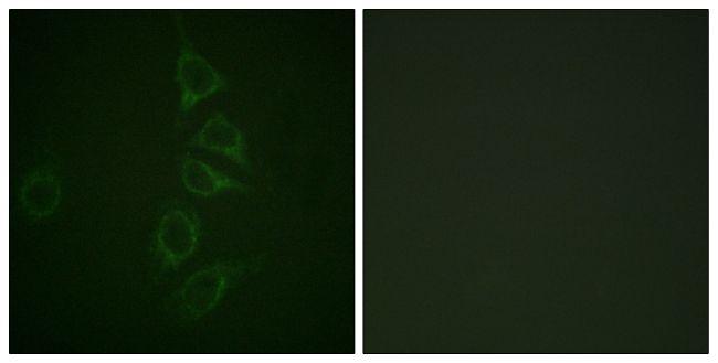 Phospho-Calmodulin (Thr79, Ser81) Antibody (PA5-38433)