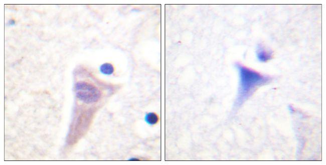 Phospho-Calmodulin (Thr79, Ser81) Antibody (PA5-38433) in Immunohistochemistry (Paraffin)