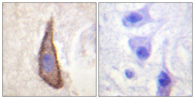 Phospho-CD226 (Ser329) Antibody (PA5-38444) in Immunohistochemistry (Paraffin)