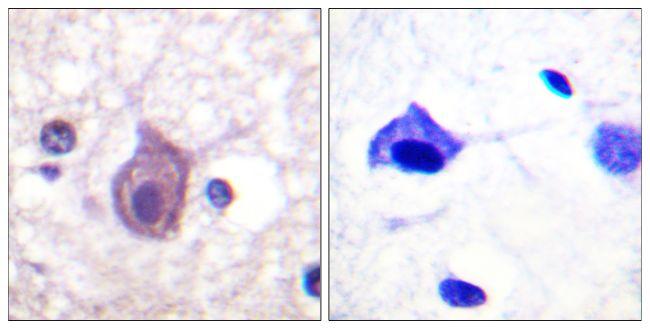 Phospho-CD4 (Ser433) Antibody (PA5-38447) in Immunohistochemistry (Paraffin)