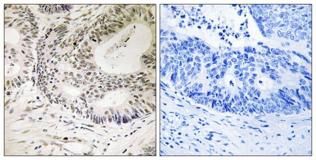 Phospho-53BP1 (Ser25) Antibody (PA5-38465) in Immunohistochemistry (Paraffin)