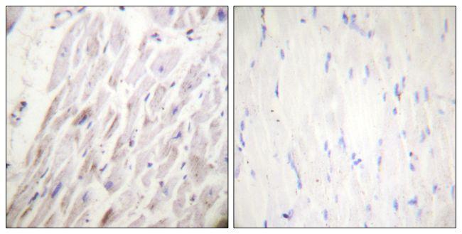 Phospho-Dematin (Ser403) Antibody (PA5-38472)
