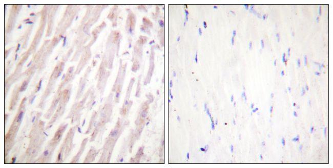 Dematin Antibody (PA5-38473) in Immunohistochemistry (Paraffin)