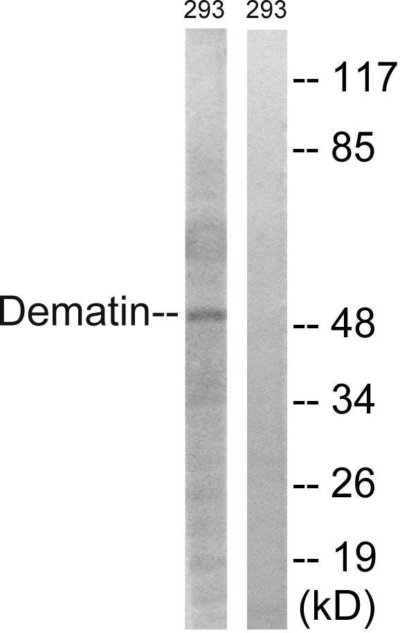 Dematin Antibody (PA5-38473) in Western Blot