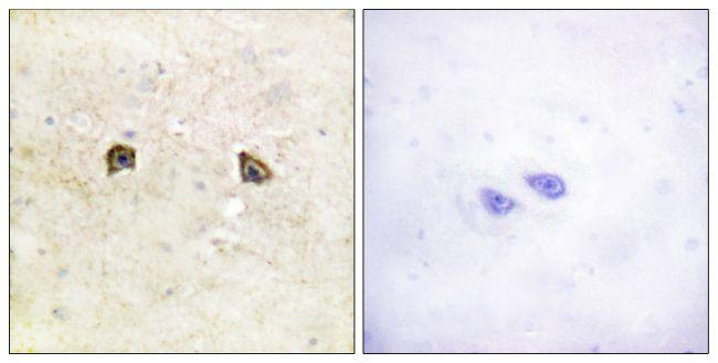 EphB1/EphB2 Antibody (PA5-38481) in Immunohistochemistry (Paraffin)