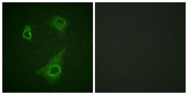 Phospho-EpoR (Tyr368) Antibody (PA5-38483)