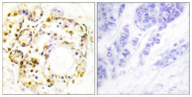Phospho-ERK3 (Ser189) Antibody (PA5-38485) in Immunohistochemistry (Paraffin)