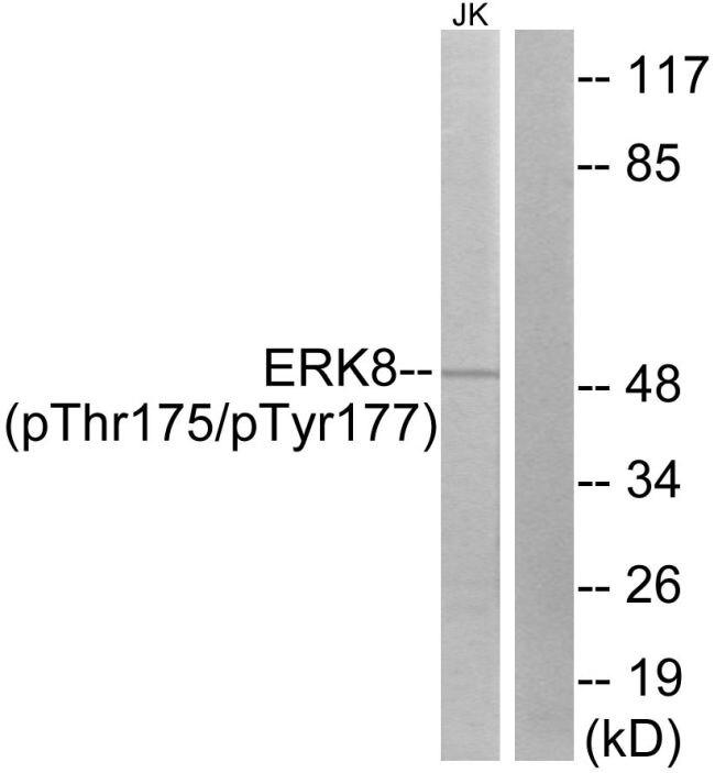 Phospho-MAPK15 (Thr175, Tyr177) Antibody (PA5-38486) in Western Blot