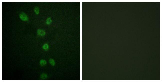 Phospho-GATA4 (Ser105) Antibody (PA5-38494) in Immunofluorescence