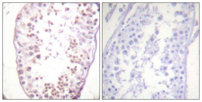 Phospho-HDAC6 (Ser22) Antibody (PA5-38498) in Immunohistochemistry (Paraffin)