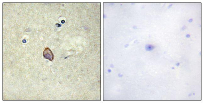 Phospho-ErbB3 (Tyr1328) Antibody (PA5-38500)