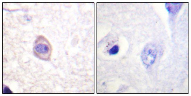 Phospho-IFNGR1 (Tyr457) Antibody (PA5-38504) in Immunohistochemistry (Paraffin)