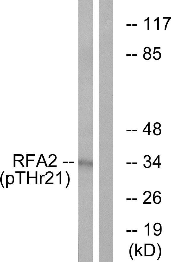 Phospho-RPA2 (Thr21) Antibody (PA5-38510)