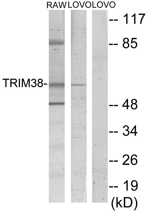 RNF15 Antibody (PA5-38516)