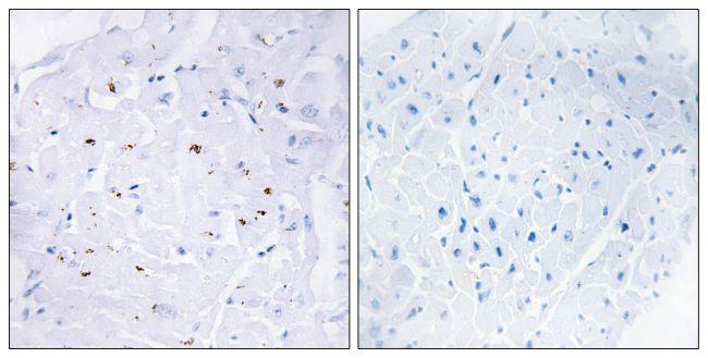 Phospho-SMAD3 (Thr179) Antibody (PA5-38519) in Immunohistochemistry (Paraffin)