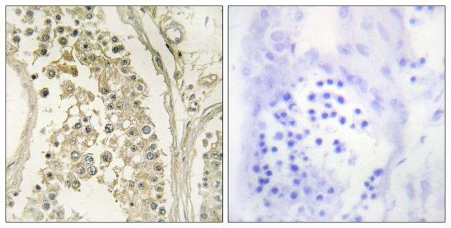 MAST4 Antibody (PA5-38523) in Immunohistochemistry (Paraffin)