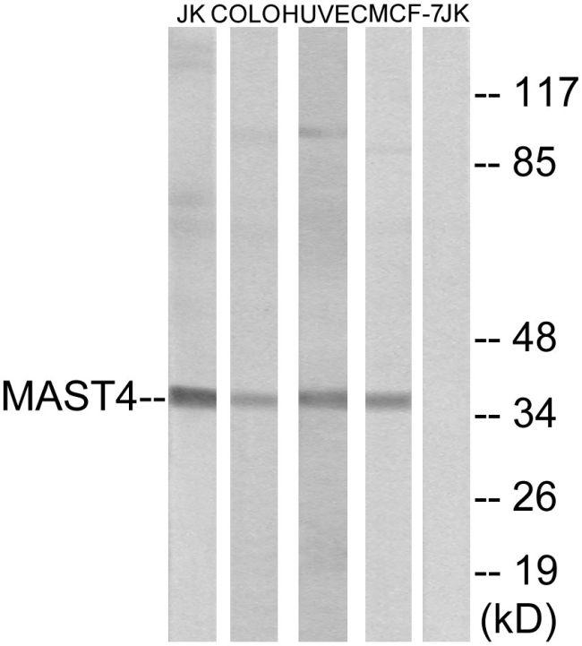 MAST4 Antibody (PA5-38523) in Western Blot