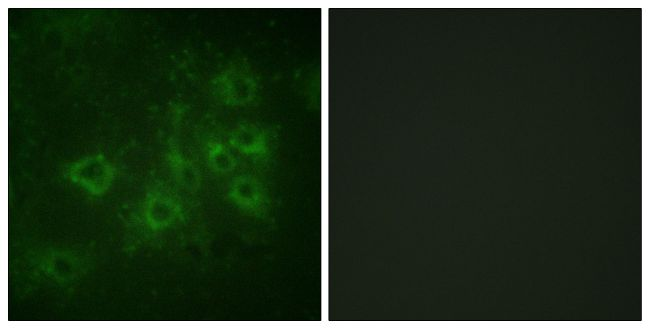 Phospho-Synapsin 1 (Ser605) Antibody (PA5-38528)