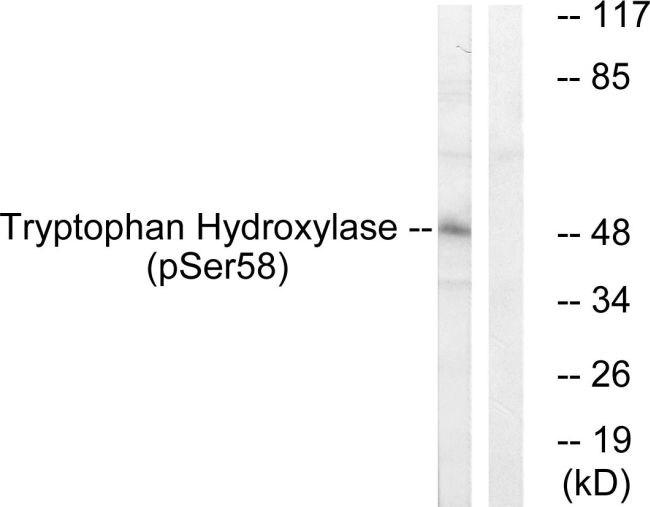 Phospho-Tryptophan Hydroxylase (Ser58) Antibody (PA5-38531)