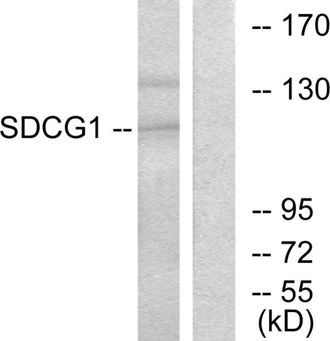 NEMF Antibody (PA5-38539) in Western Blot