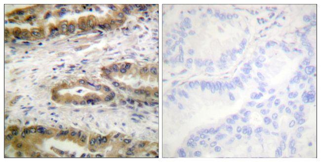 Phospho-VEGF Receptor 2 (Tyr1054) Antibody (PA5-38540) in Immunohistochemistry (Paraffin)