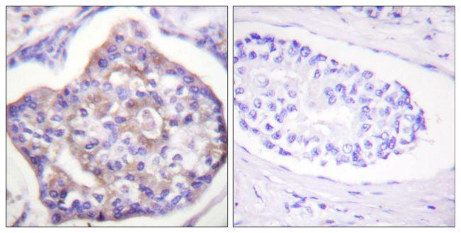 Phospho-Vinculin (Tyr821) Antibody (PA5-38546) in Immunohistochemistry (Paraffin)