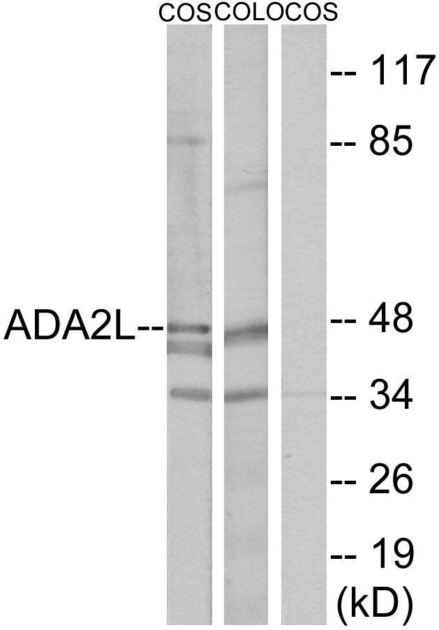 TADA2L Antibody (PA5-38547)