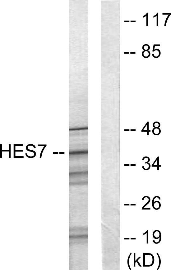 HEXIM1 Antibody (PA5-38554) in Western Blot
