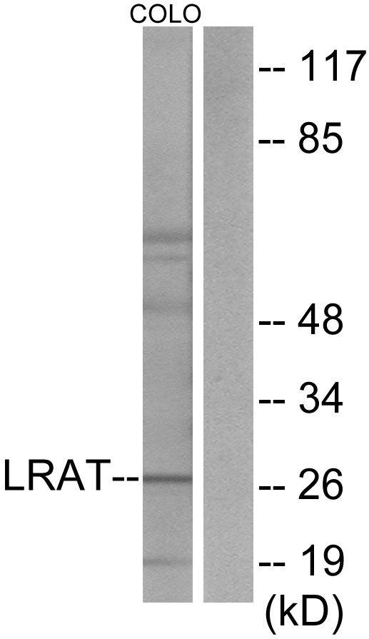 LRAT Antibody (PA5-38556) in Western Blot