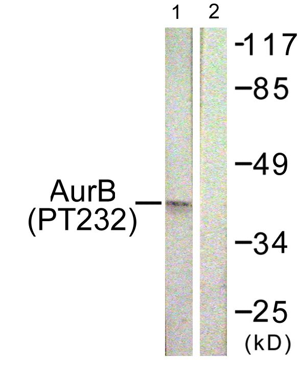 Phospho-Aurora B (Thr232) Antibody (PA5-38557) in Western Blot