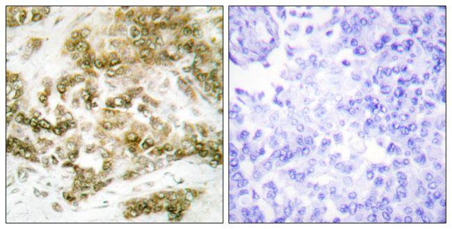 TBX15/TBX18 Antibody (PA5-38563) in Immunohistochemistry (Paraffin)