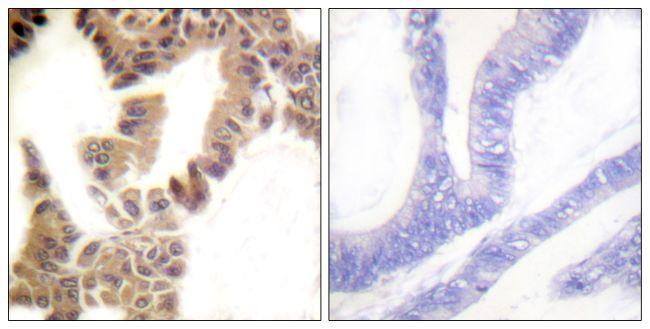 Phospho-Caspase 2 (Ser157) Antibody (PA5-38566)